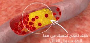 كيفية تقليل نسبة الكوليسترول في الدم ؟ نصائح منزلية سهلة