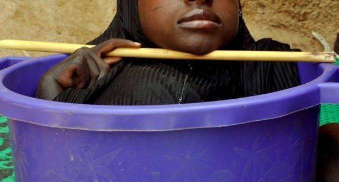 """رحيل الفتاة """"رحمة"""" بعد 19 عاما قضتها في وعاء بلاستيكي"""