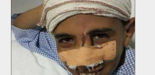 """ضواحي آسفي..تفاصيل فقدان طفل لإعادة """"أنفه"""" الذي قضمته حمارة"""