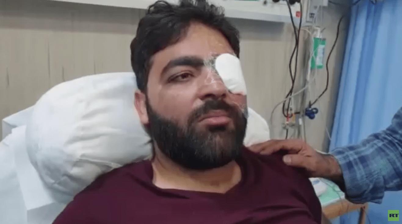 صورة الصحفي معاذ عمارنة يخضع لعملية.. و الطاقم الطبي يقرر ترك الرصاصة داخل رأسه